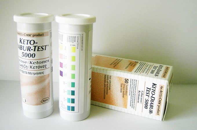 adult in in protein urine